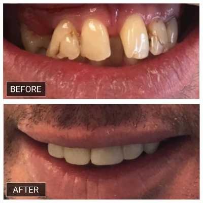 Smile-makeover-with-commposite-filling