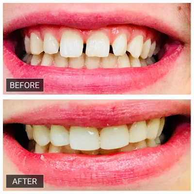Smile-makeover-with-commposite-veneers